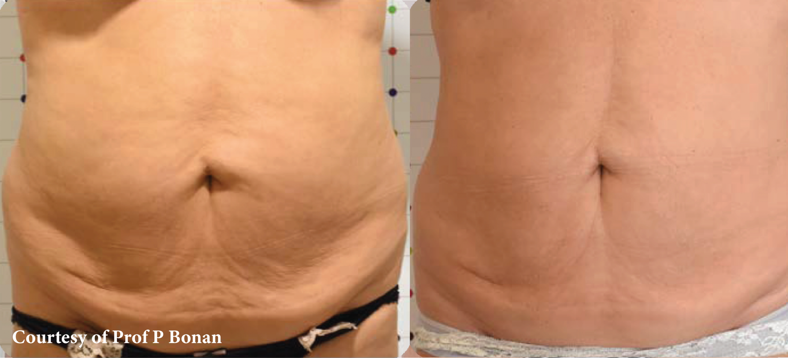 Onda Coolwaves Body Contouring - Before and After