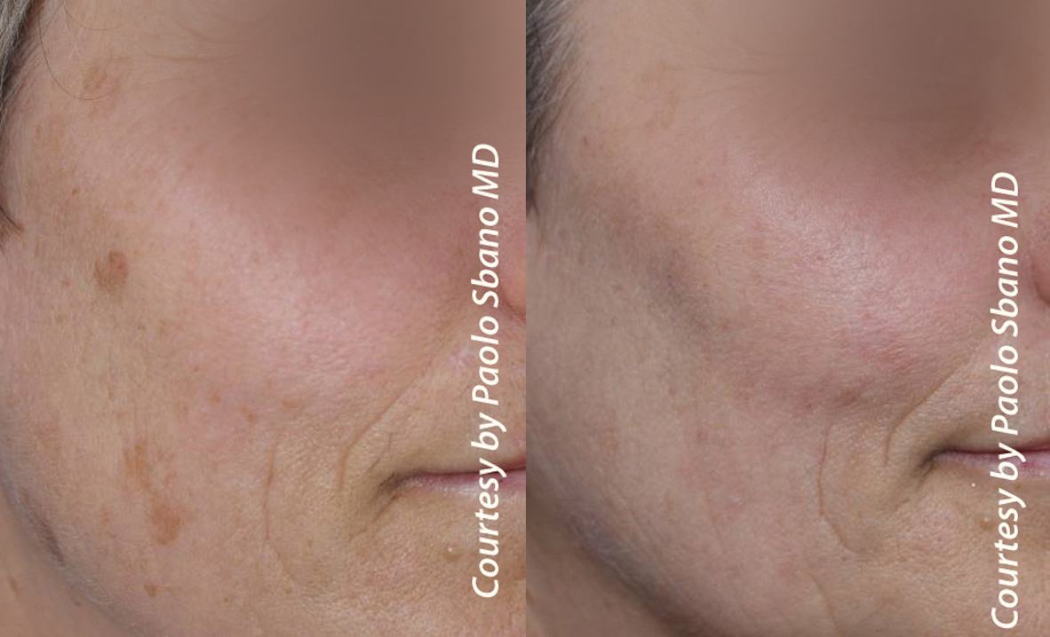 Q-Plus EVO Pigmented Lesions Before and After