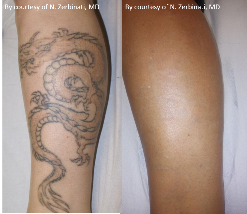 Before and After Discovery Pico Tattoo Removal Treatment