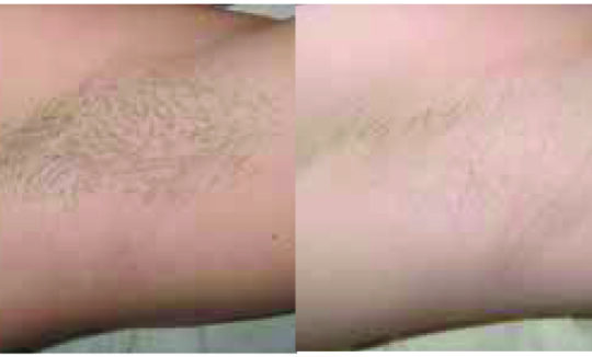 IFL Before and After - Hair Removal