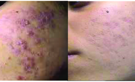 IFL Before and After_ Acne