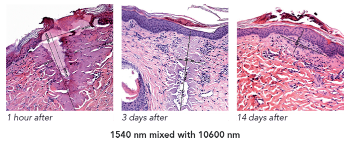 Histology after using Youlaser MT Mixed Technology