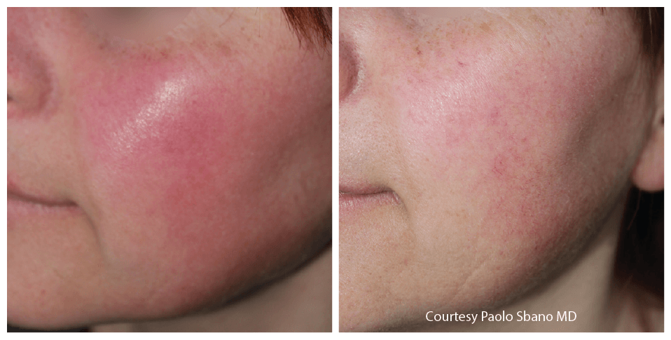 Quanta System 585 Before and Afters - Couperose Redness - Paolo Sbano MD