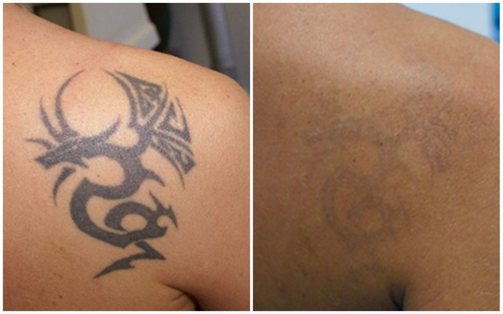 Quanta System Asset Before and Afters Tattoo Removal 2 Nicola Zerbinati MD