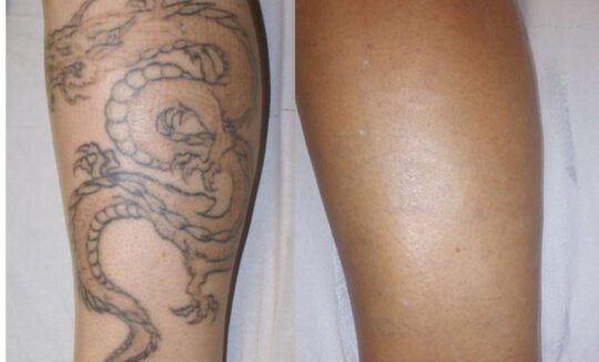 Quanta System Asset Before and Afters Tattoo Removal 3 Nicola Zerbinati MD
