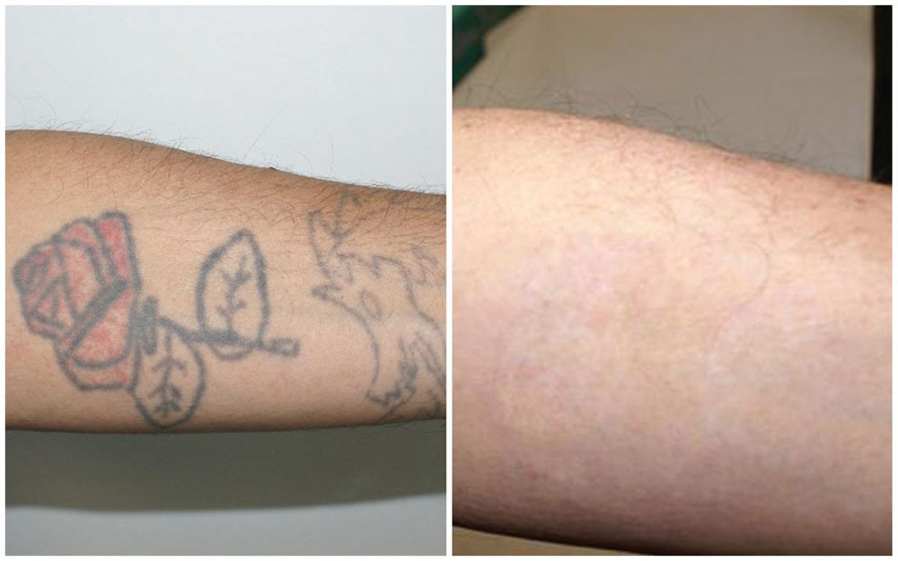 Quanta System Asset Before and Afters Tattoo Removal Nicola Zerbinati MD