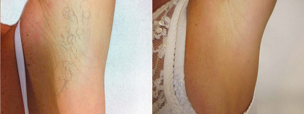 Quanta System Duetto MT EVO - Hair Removal Before and After