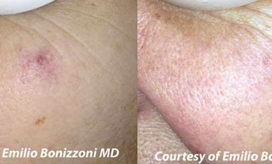 Quanta System Duetto MT EVO - Vascular Lesion Before and After - Emilio Bonizzoni MD