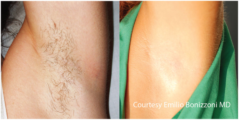 Quanta System Light EVO Series - Before and After Hair Removal Treatment - Emilio Bonizzoni MD