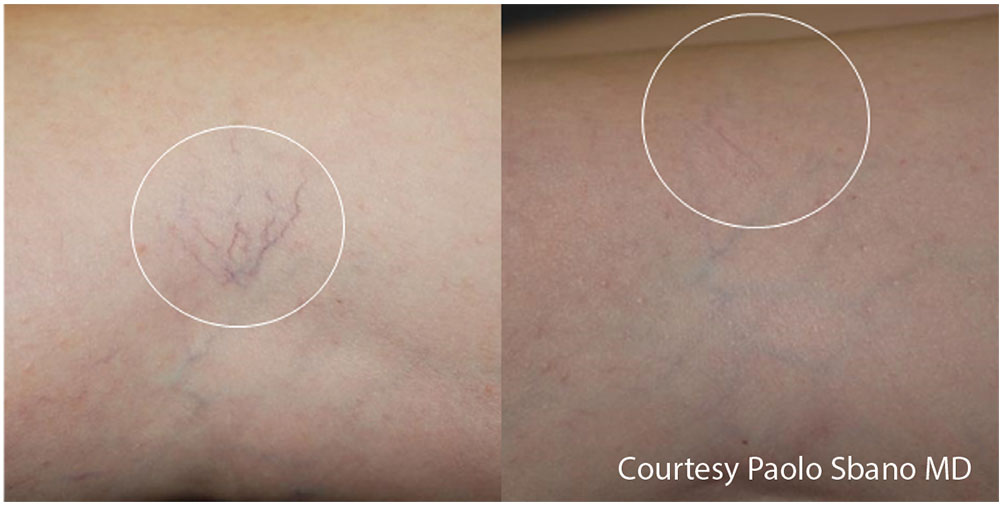 Quanta System Light EVO Series - Before and After Vascular Lesions Treatment - Paolo Sbano MD