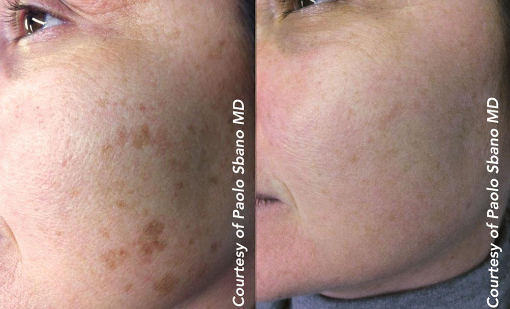 Quanta System Q-Plus C EVO MT - Benign Pigmented Lesions Before and After 2 - Paolo Sbano MD