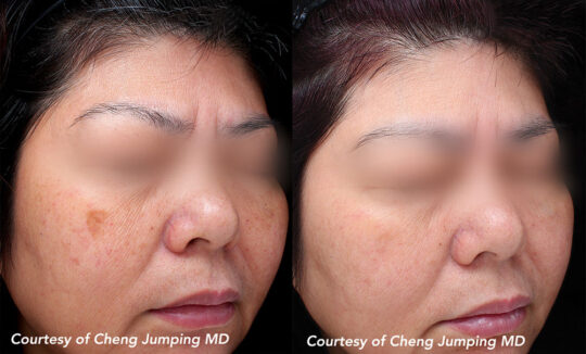 Quanta System Q-Plus C EVO MT - Benign Pigmented Lesions Before and After - Cheng Jumping MD