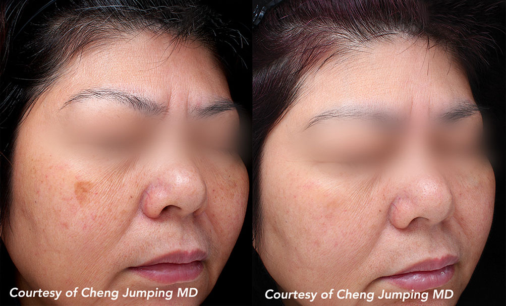 Quanta System Q-Plus EVO - Benign Pigmented Lesions Before and After