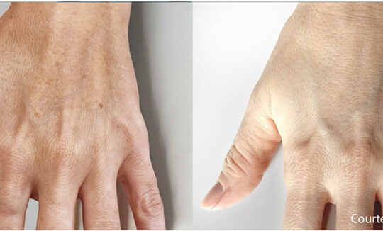 Quanta System Thunder Hand Pigmented Lesions Before and Afters - Paolo Sbano MD