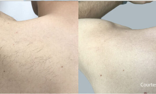 Quanta System Thunder Men Shoulders Hair Removal Before and Afters