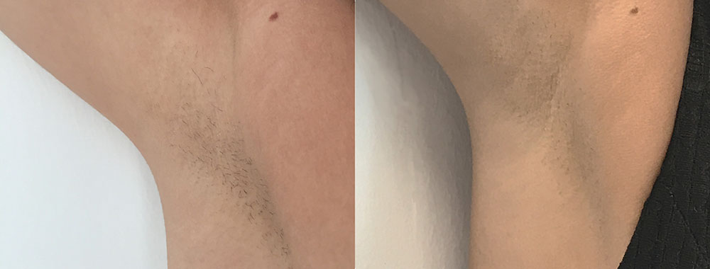 Quanta System Thunder Underarms Hair Removal Before and Afters