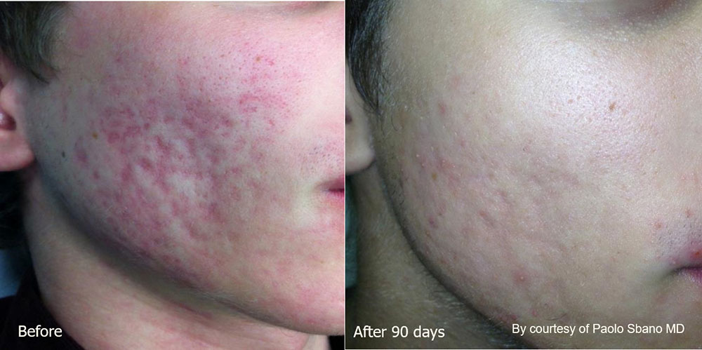Quanta System Youlaser MT Before and After Acne Scar Treatment - Paolo Sbano MD