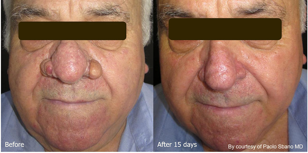 Quanta System Youlaser MT Before and After Rhinophyma Treatment - Paolo Sbano MD