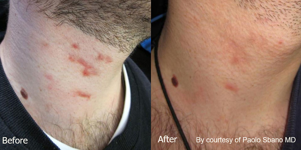 Quanta System Youlaser MT Before and After Scar Treatment - Paolo Sbano MD