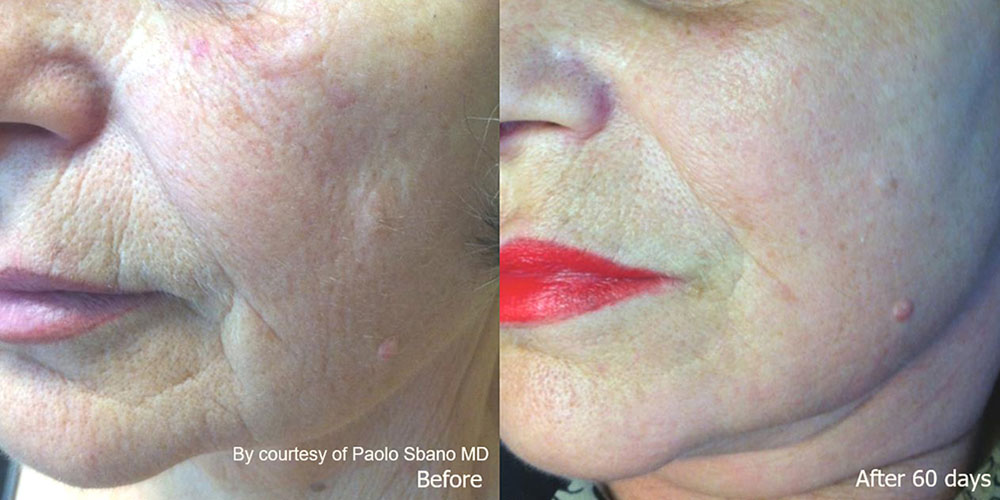 Quanta System Youlaser MT Before and After Skin Resurfacing - Paolo Sbano MD