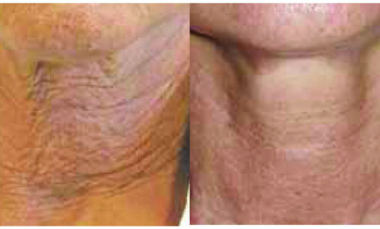 Lift Shape Before and After - Skin Tightening