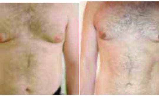 Lift Shape Before and After - Fat Reduction and Skin Tightening