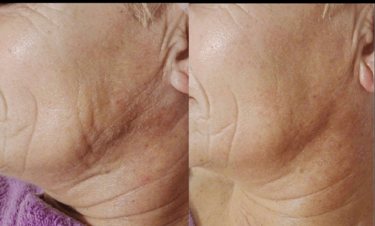 Novaestetyc EGO - Before and Afters 3