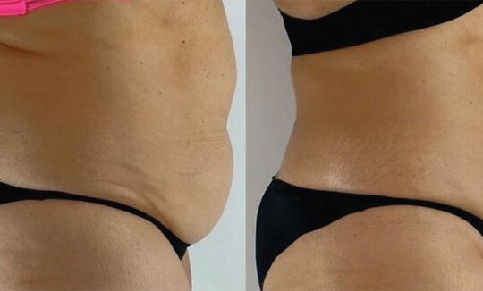 Onda Coolwaves Body Contouring - Before and After1