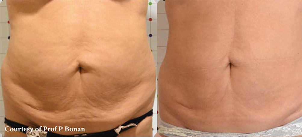 Onda Coolwaves Body Contouring - Before and After2