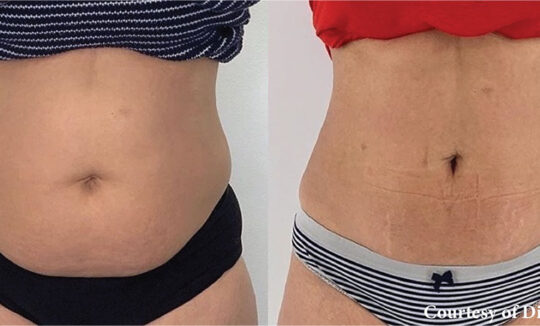 Onda Coolwaves Body Contouring - Before and After3