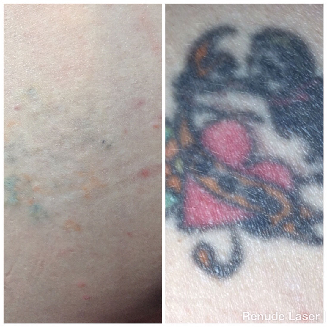 Before and After 4 sessions Renude Laser 1