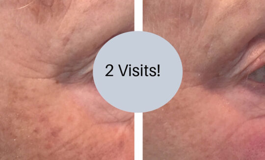 Before and After 2 Pigment Treatments - Courtesy Renude Tattoo Removal