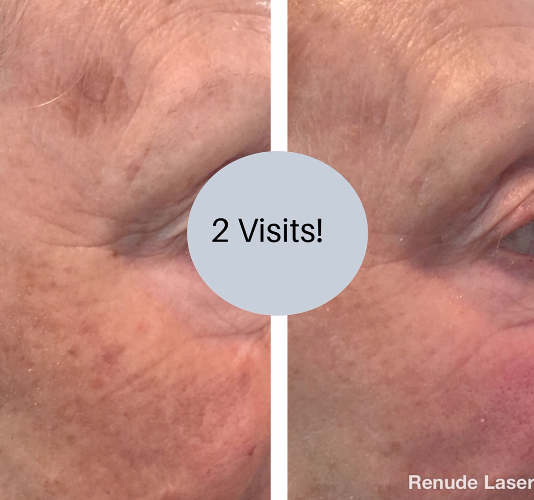Before and After Pigment Renude Laser