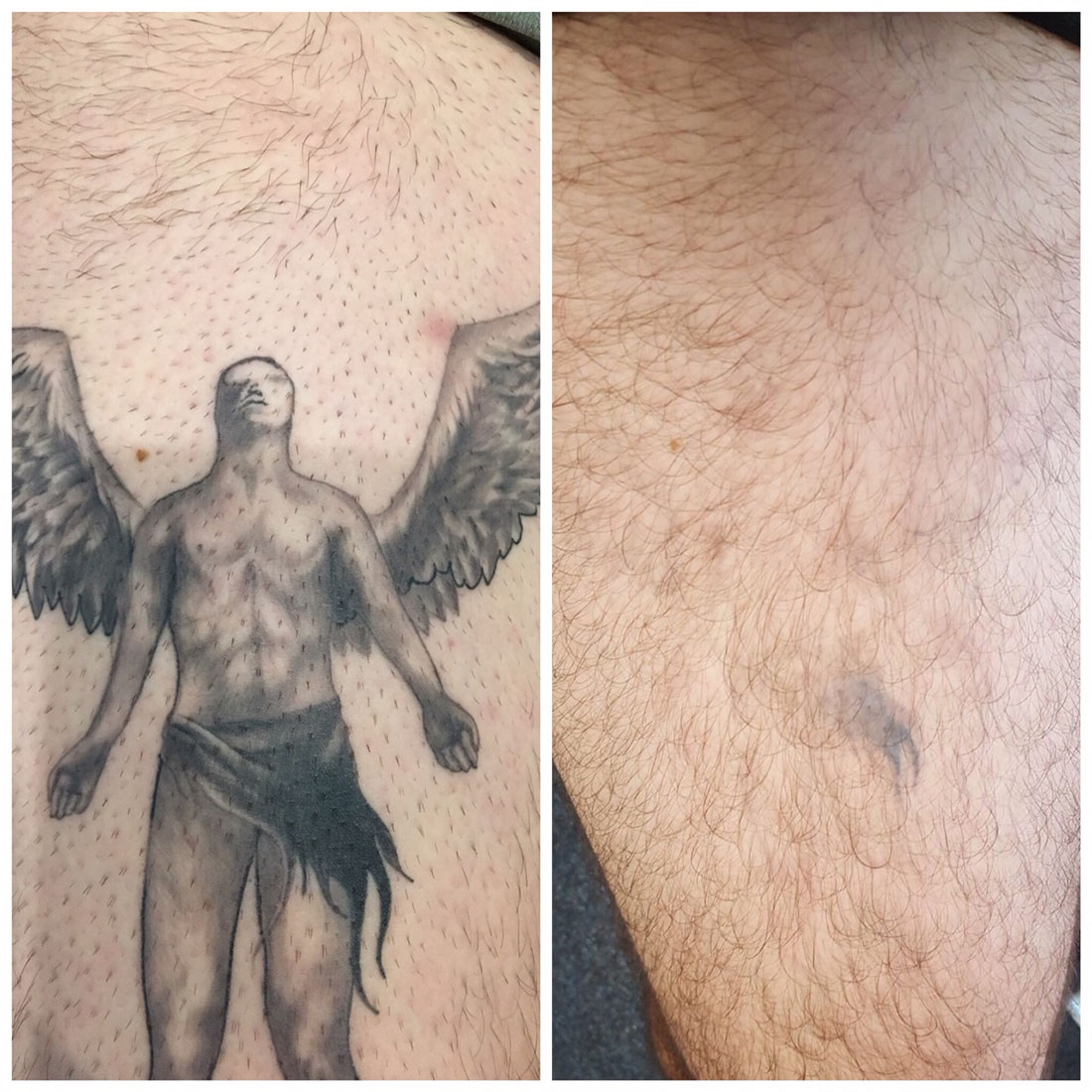Before and After Tattoo Removal Renude Laser 3