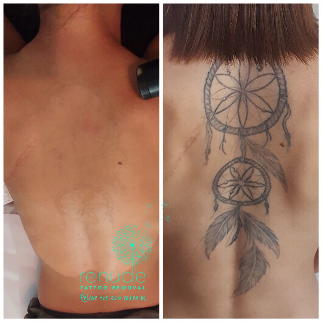 Before and After Tattoo Removal Renude Laser 4
