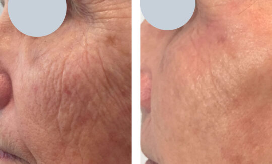 Before and After Skin Tightening - Courtesy Renude Tattoo Removal