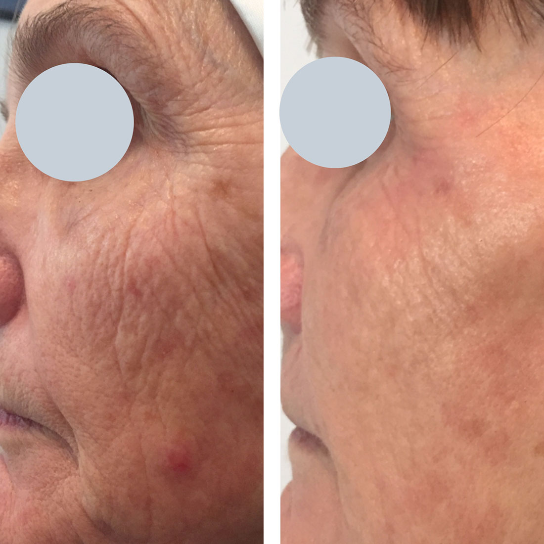 Before and After skin tightening Renude Laser