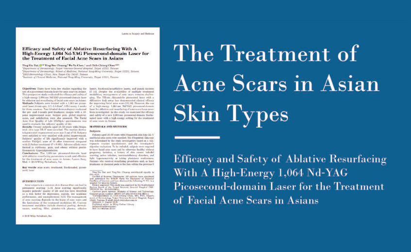 The Treatment Of Acne Scars in Asian Skin Types