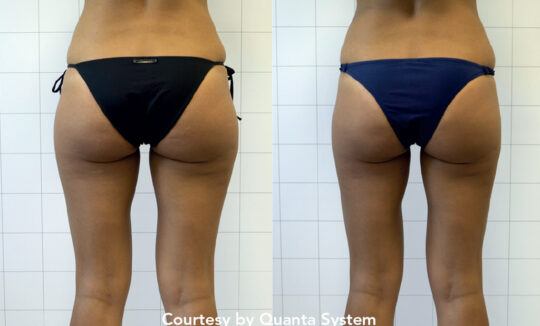 Delinea Before and Afters - Buttocks
