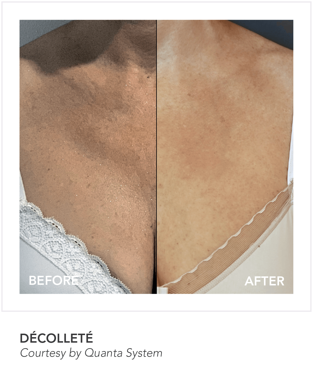 Before & After Decollete Skin App Treatment