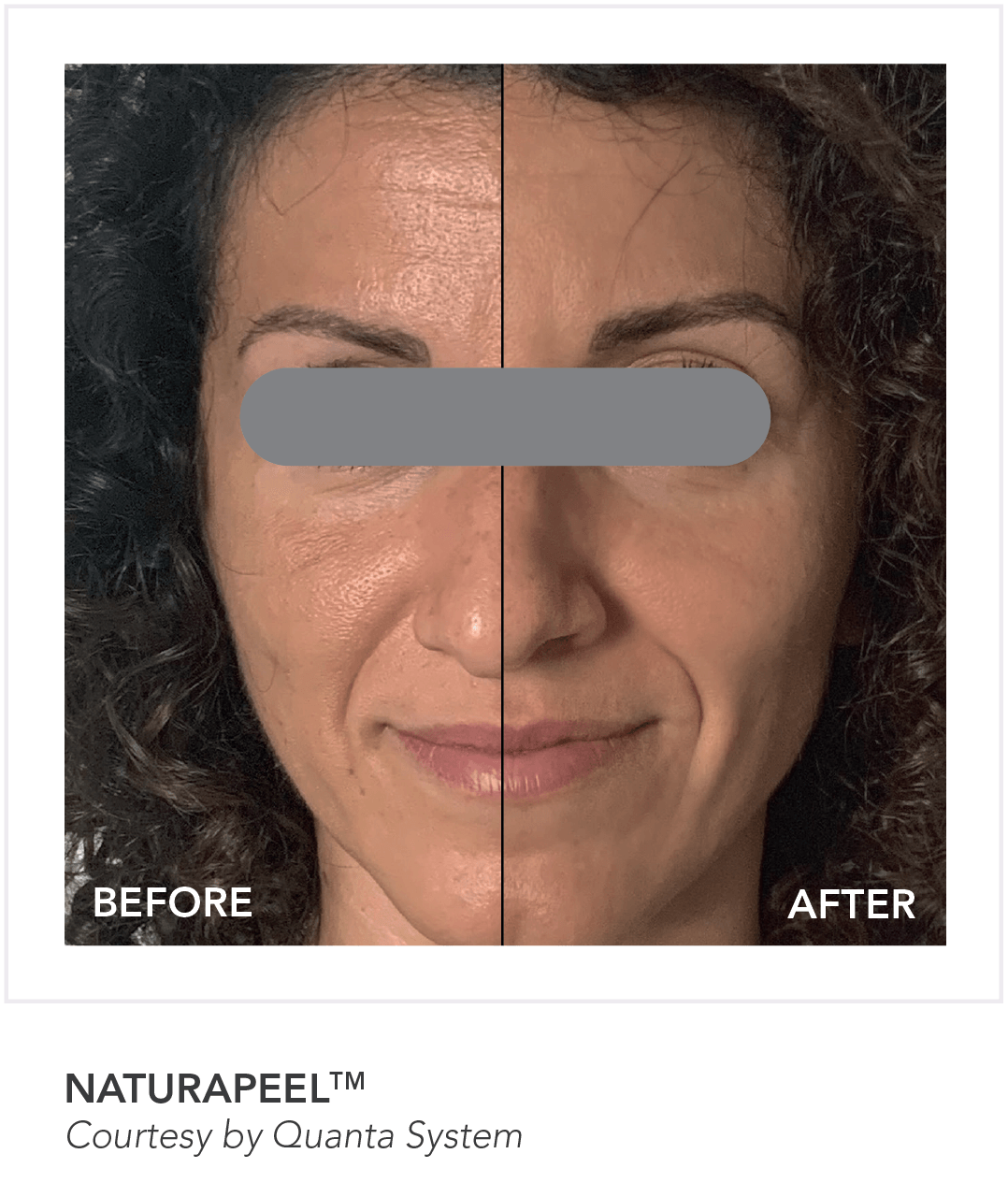 Before & After NaturaPeel Skin App Treatment