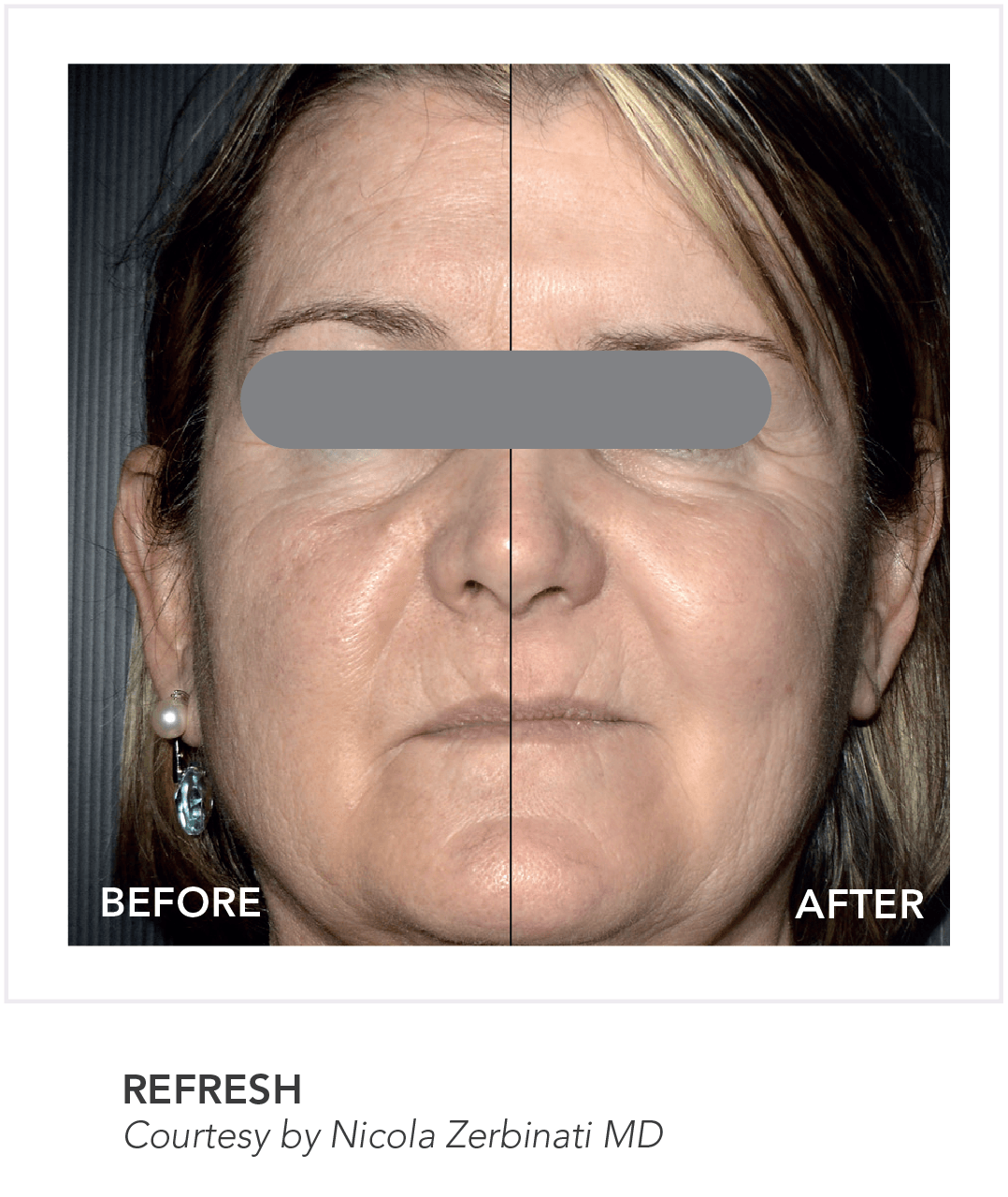 Before & After Refresh Skin App Treatment