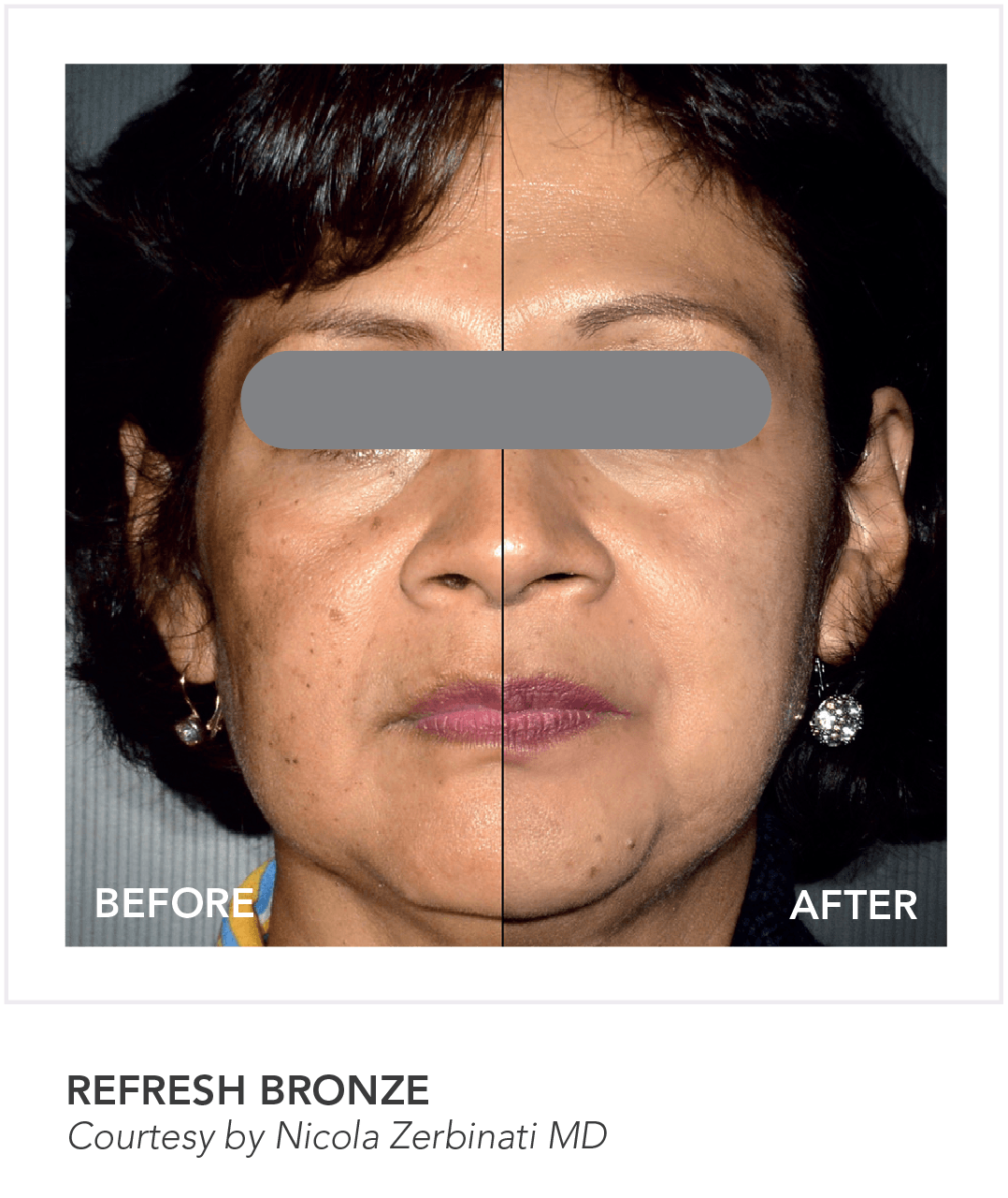 Before & After Refresh Bronze Skin App Treatment