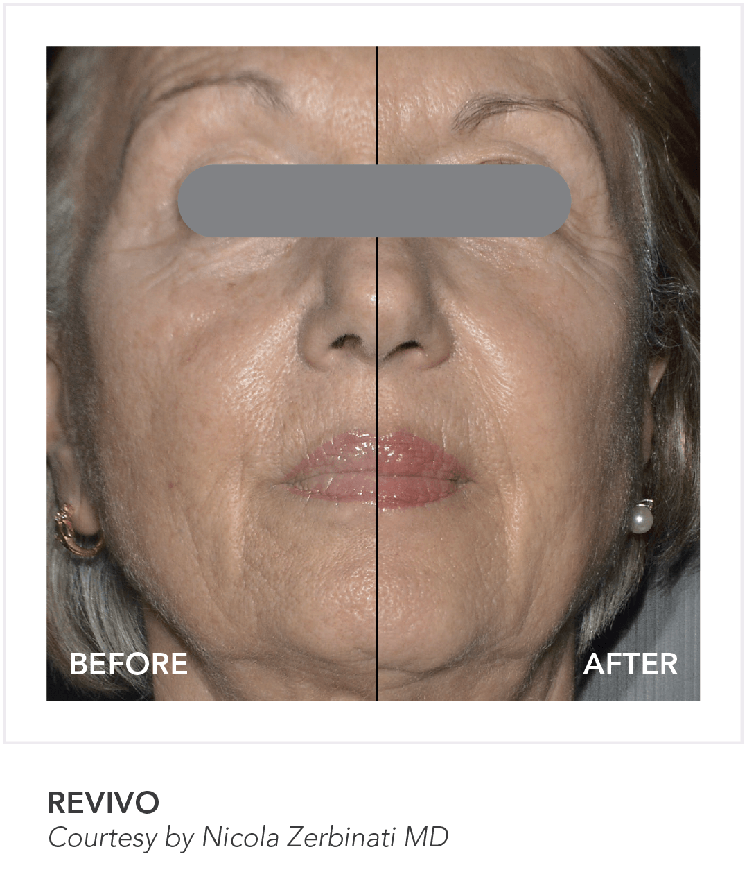 Before & After Revivo Skin App Treatment